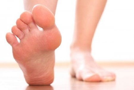 Flatfoot - Symptoms, Causes, Treatment