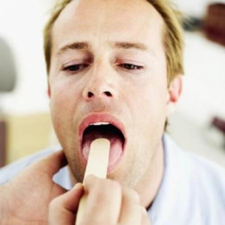 Treatment of laryngitis quickly at home