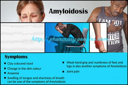 Amyloidosis: Prognosis, Survival Rate, Treatment, Symptoms, Causes, Diagnosis