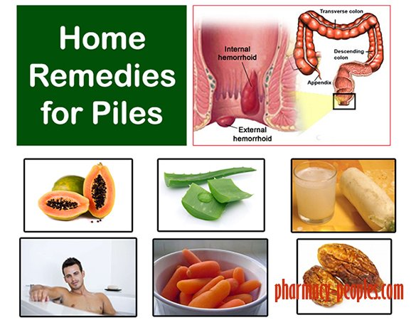 Piles Pain Relief Home Remedy